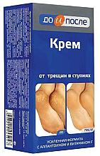 Voňavky, Parfémy, kozmetika Krém proti popraskaniu na nohách - Do i Posle